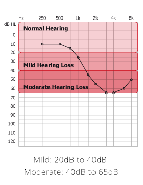 Mild Hearing Loss graph