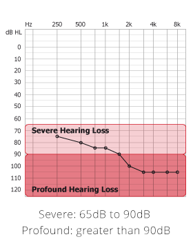 Severe Hearing Loss graph